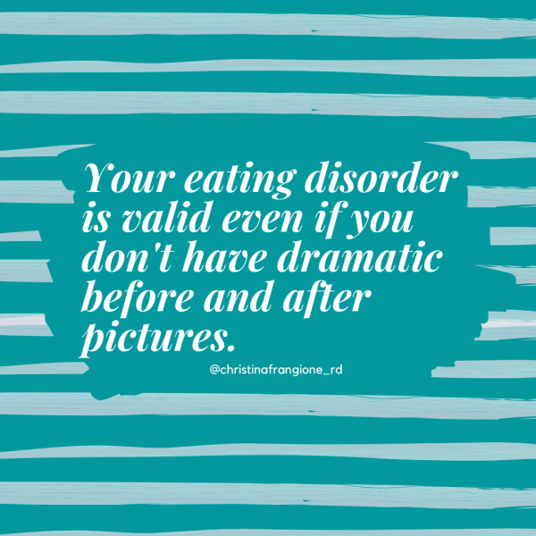 your eating disorder is valid even if you dont have dramatic before and adter pictures